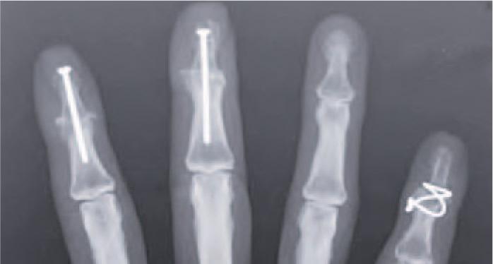 arthrose finger bilder